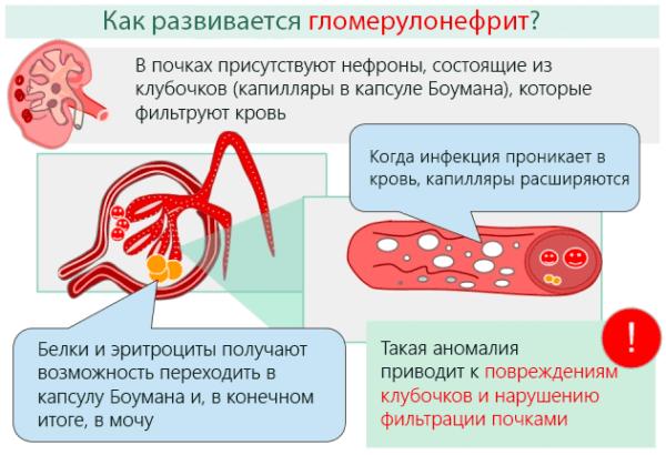 Как развивается гломерулонефрит