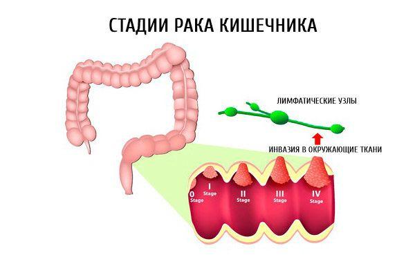 Как развивается рак кишечника