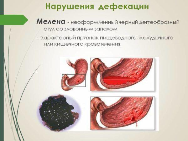 Кал при внутреннем кровотечении - фото