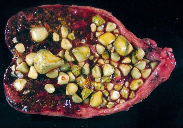 Калькулезный холецистит – это воспаление желчного пузыря, связанное с отложением камней