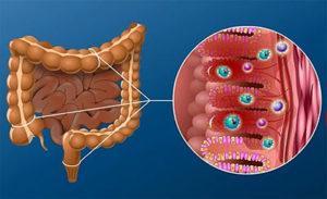 Кишечный дисбактериоз