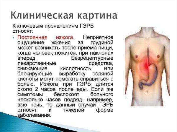 Клиническая картина ГЭРБ