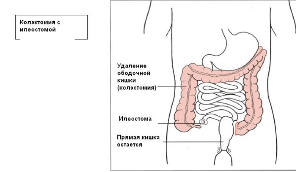 Колэктомия с илеостомой