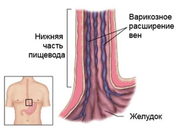Кровотечение из варикозно расширенных вен пищевода