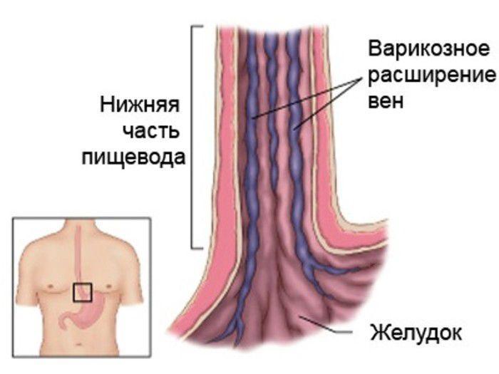 Почки кровотечение из анала при