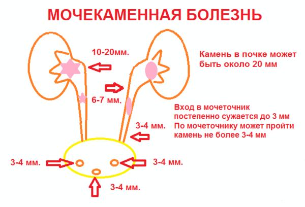 Мочекаменная болезнь изнутри