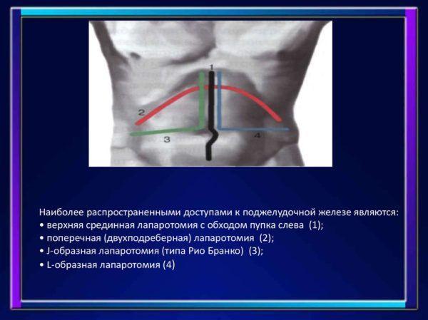 Наиболее распространенные доступы к поджелудочной железе