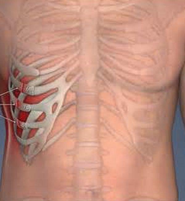 Нужно сделать рентген и убедиться в отсутствии повреждений грудной клетки