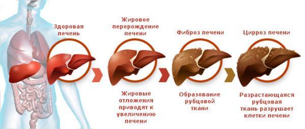 Образование цирроза печени
