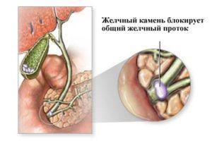 Обструкция или атрезия желчевыводящих протоков