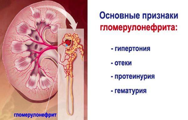 Основные признаки при гломерулонефрите