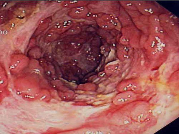 Острая форма колита кишечника