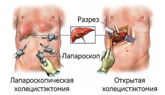 Отличие лапароскопической холецистэктомии от открытой
