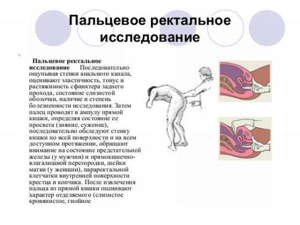 Пальцевое ректальное обследование
