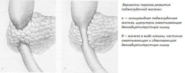 Варианты пороков развития поджелудочной железы