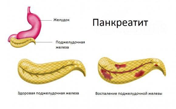 Панкреатит изнутри