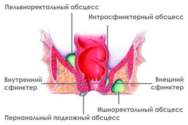 Парапроктит — гнойное воспаление параректальной клетчатки (тканей вокруг прямокишечной зоны)
