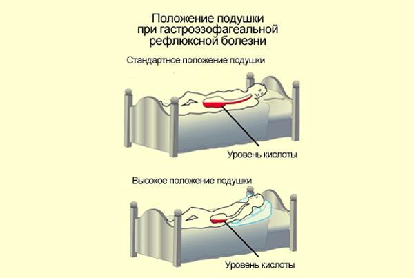 Положение подушка при гастроэзофагеальной рефлюксной болезни