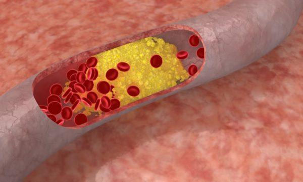 Повышенный уровень холестерина в крови