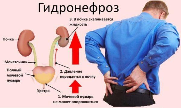 Причина гидронефроза