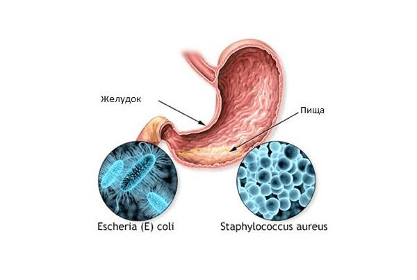 Причина отравления чаще всего связана с нарушением нормальной микрофлоры ЖКТ