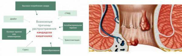 Причины кандидоза кишечника