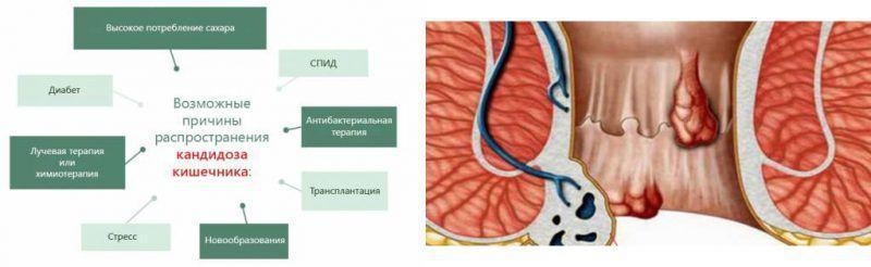Как лечить грибок в кишечнике симптомы
