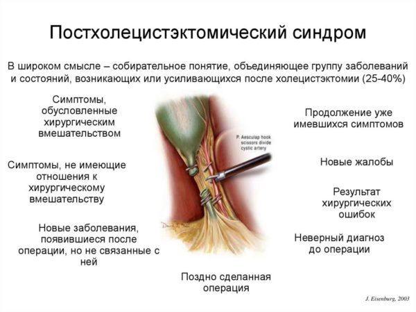 Причины постхолецистэктомического синдрома