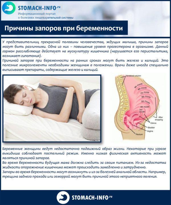 Причины запоров при беременности