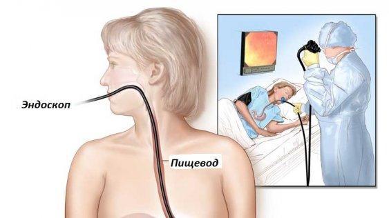 Процедура эндоскопии