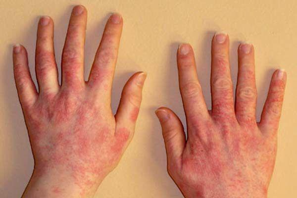 Проявление пищевой аллергии на руках