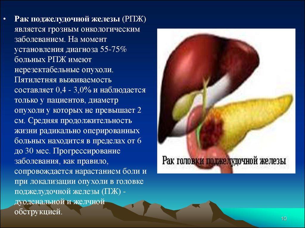 Недостаточность поджелудочной железы. Виды, причины, лечение