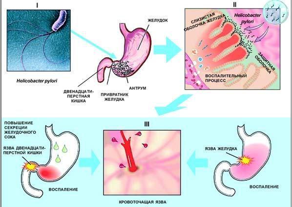 Развитие язвенной болезни желудка