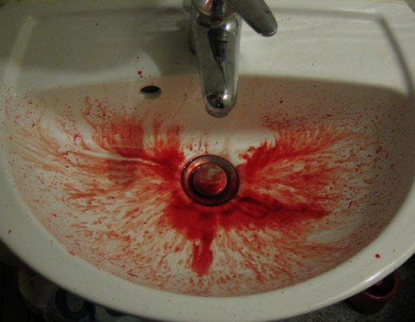 Рвота с кровью - один из симптомов