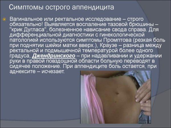 Аппендицит без рвоты и температуры
