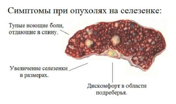 Симптомы патологии селезенки
