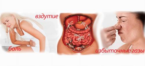 Симптомы расстройства желудка