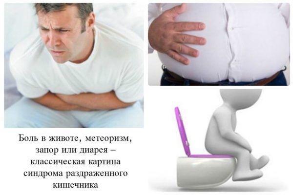 Симптомы синдрома раздраженного кишечника