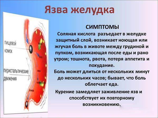 Болит желудок слабость головокружение при язве желудка