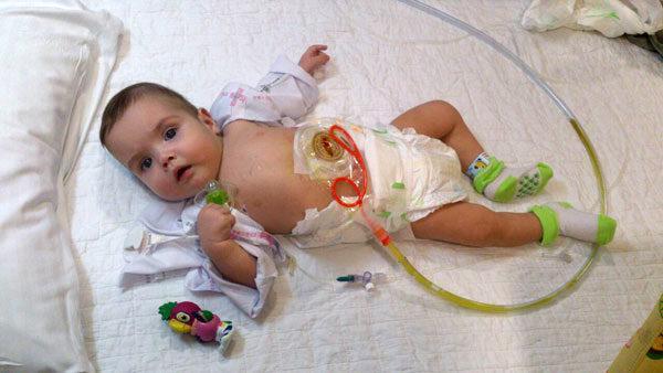 Синдром короткой кишки у ребенка