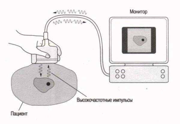 Схема работы УЗ-установки
