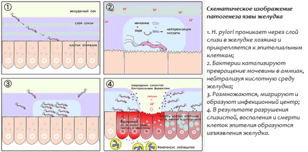 Схематическое изображение патогенеза язвы желудка