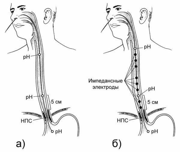 Схемы расположения датчиков в пищеводе (НПС - нижний пищеводный сфинктер)