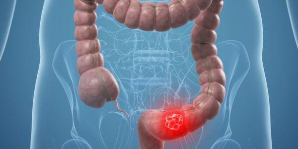 Схожие симптомы наблюдаются у рака кишечника