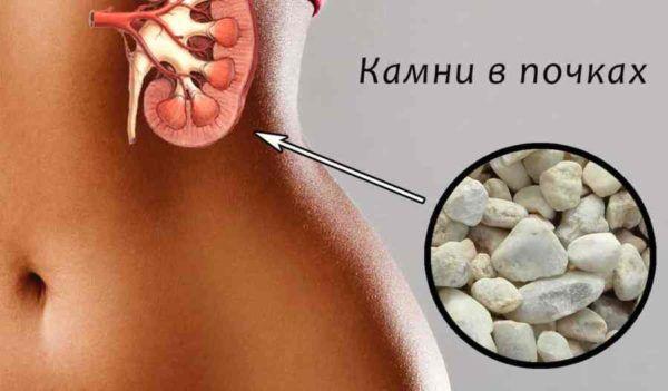 Спазмы могут быть вызваны движением камней в почках