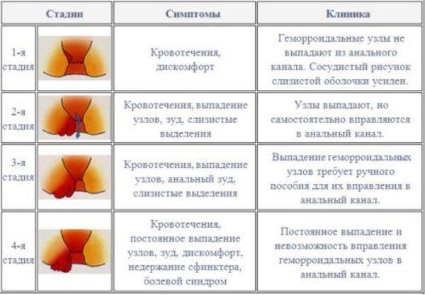 Стадии и симптомы внутреннего геморроя