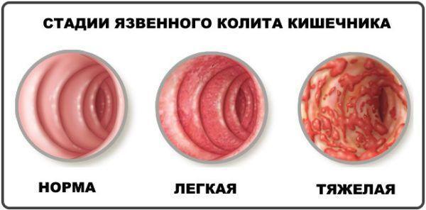 Стадии поражения кишечника язвенным колитом