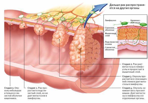 Стадии рака кишечника