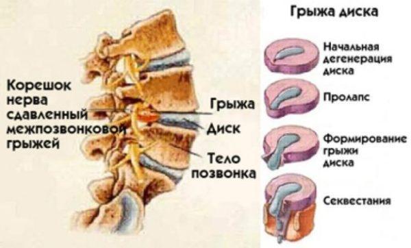Стадии развития грыжи межпозвоночного диска