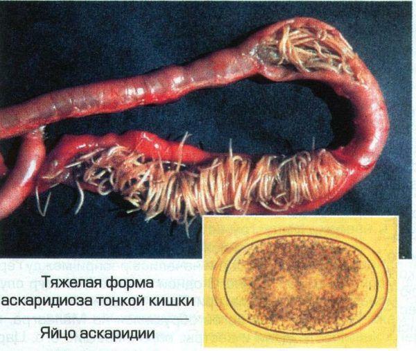 Тяжелый аскаридоз в тонкой кишке